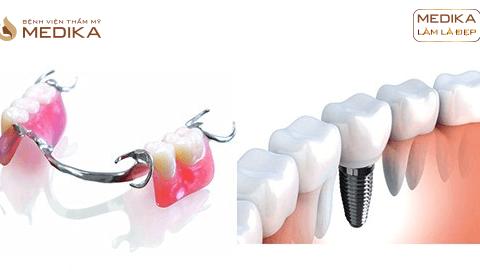 Răng xương (resine) / Composite - Tháo lắp