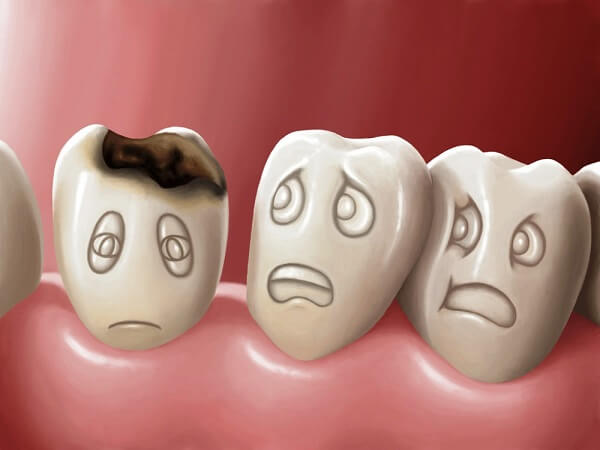 Tẩy trắng răng cho răng sâu Nha khoa MEDIKA