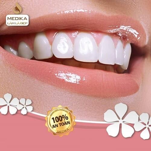Tẩy trắng răng hiệu quả an toàn tại Bệnh viện thẩm mỹ MEDIKA.vn
