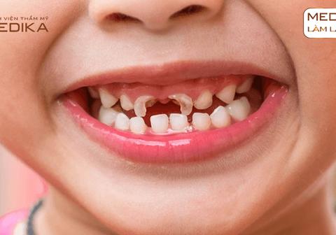 Trám răng trẻ em (hóa trùng hợp)