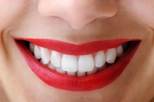 Bọc răng sứ cho răng hô ở Nha Khoa MEDIKA
