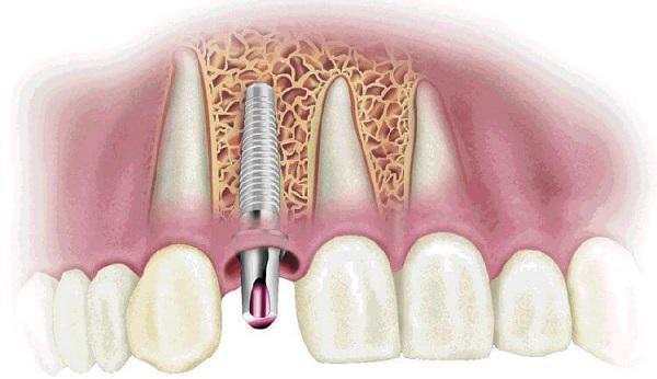 Cấy ghép Implant cho người lớn tuổi Nha Khoa MEDIKA