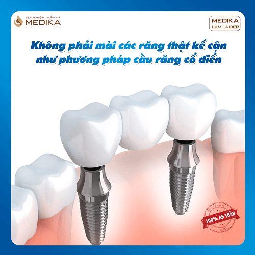 Cấy ghép Implant kết hợp làm cầu răng sứ Nha Khoa MEDIKA