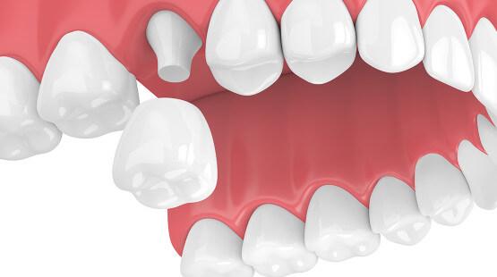 Khi nào nên bọc răng sứ thẩm mỹ Nha Khoa MEDIKA