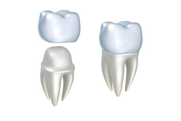 Khi nào nên bọc răng sứ thẩm mỹ ở Nha Khoa MEDIKA