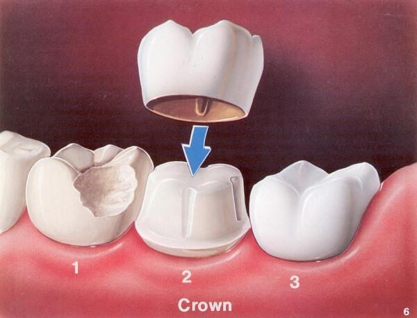 Những điều chưa biết về bọc răng sứ ở Nha Khoa MEDIKA