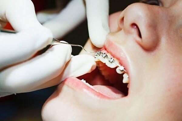 Niềng răng chỉnh nha ở Nha khoa MEDIKA