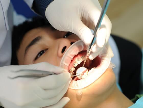 Niềng răng chỉnh nha tại Nha khoa MEDIKA