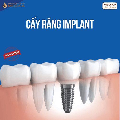 Phương pháp cấy răng Implant thời gian sử dụng lâu dài Nha khoa MEDIKA