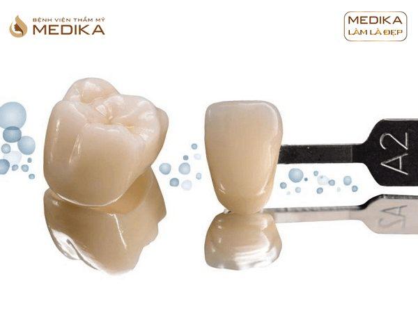 Răng sứ Zirconia A Plus - Cố định tại Nha khoa MEDIKA