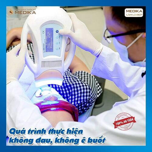 Tẩy trắng răng quá trình thực hiện không đau không ê buốt Nha khoa MEDIKA