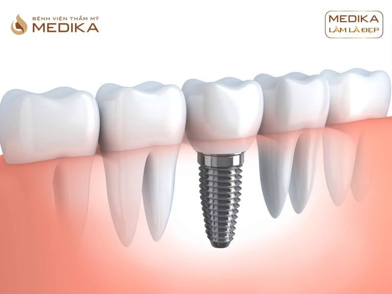 Vì sao Implant là giải pháp phục hình răng nổi bật nhất hiện nay ở Nha khoa MEDIKA