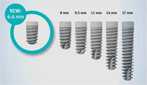 Vì sao Implant là giải pháp phục hình răng nổi bật nhất hiện nay tại Nha khoa MEDIKA