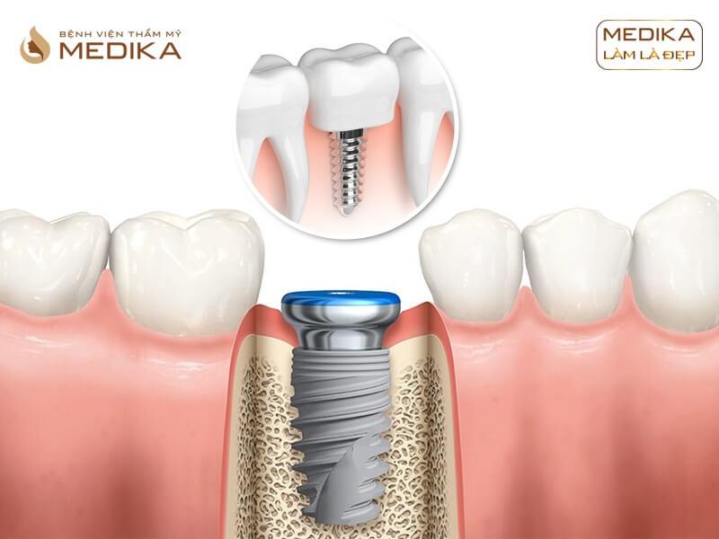 Giải pháp ghép xương trong kỹ thuật cấy ghép Implant ở Nha khoa MEDIKA