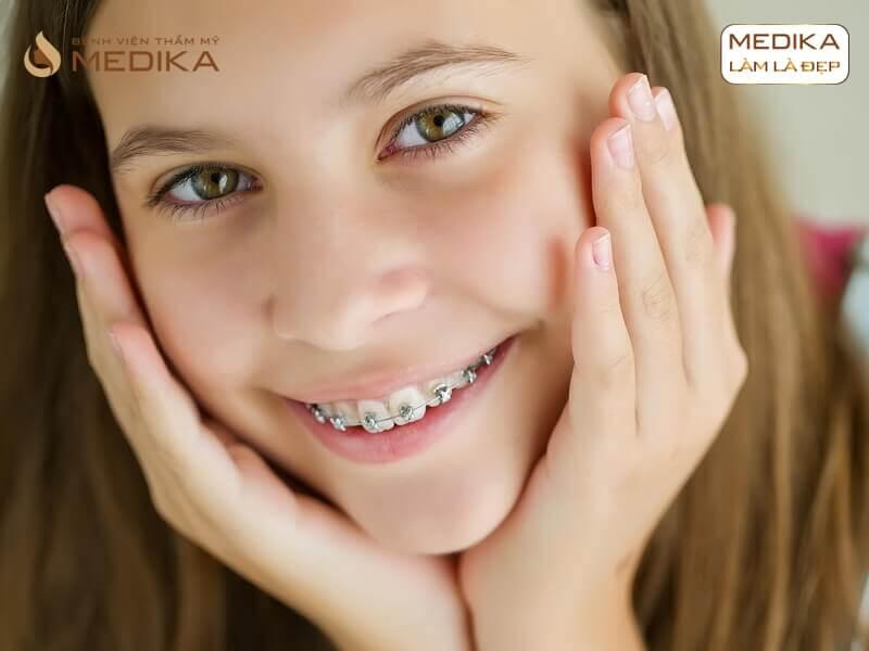 Niềng răng thẩm mỹ 1 hàm có được không? Ở nha khoa MEDIKA