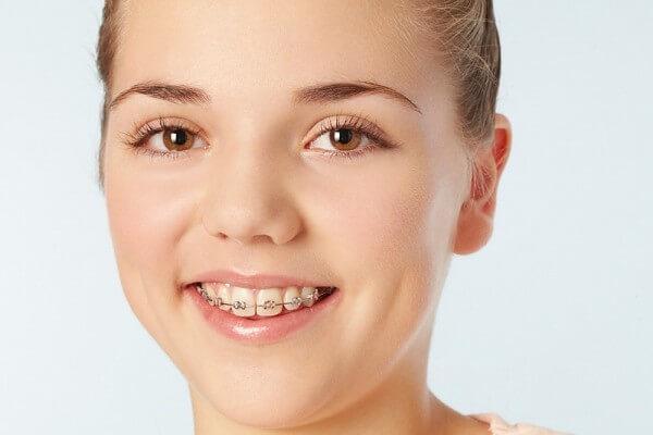 Niềng răng thẩm mỹ 1 hàm có được không? Tại nha khoa MEDIKA