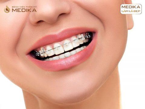 Niềng răng thẩm mỹ cho hàm móm an toàn