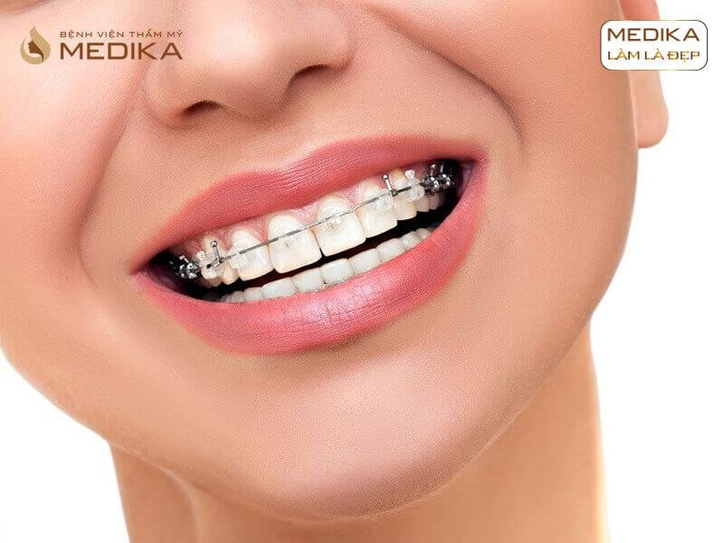 Niềng răng thẩm mỹ cho hàm móm an toàn ở Nha khoa MEDIKA