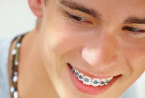 Niềng răng thẩm mỹ cho hàm móm an toàn tại Nha khoa MEDIKA