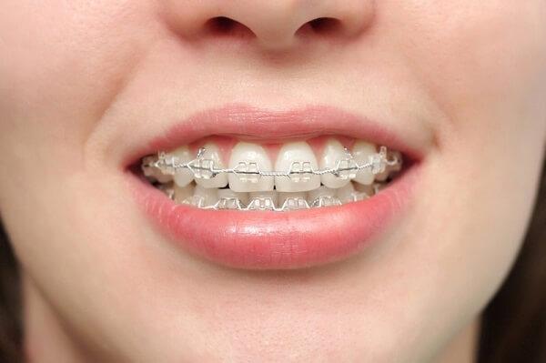 Răng hơi hô có nên niềng răng thẩm mỹ không? Tại Nha khoa MEDIKA