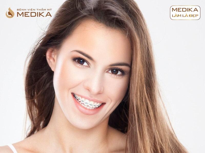 Tầm quan trọng của phương pháp niềng răng cho trẻ em ở Nha khoa MEDIKA
