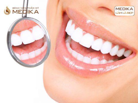 Bọc răng sứ thẩm mỹ nguyên hàm có tốt không?