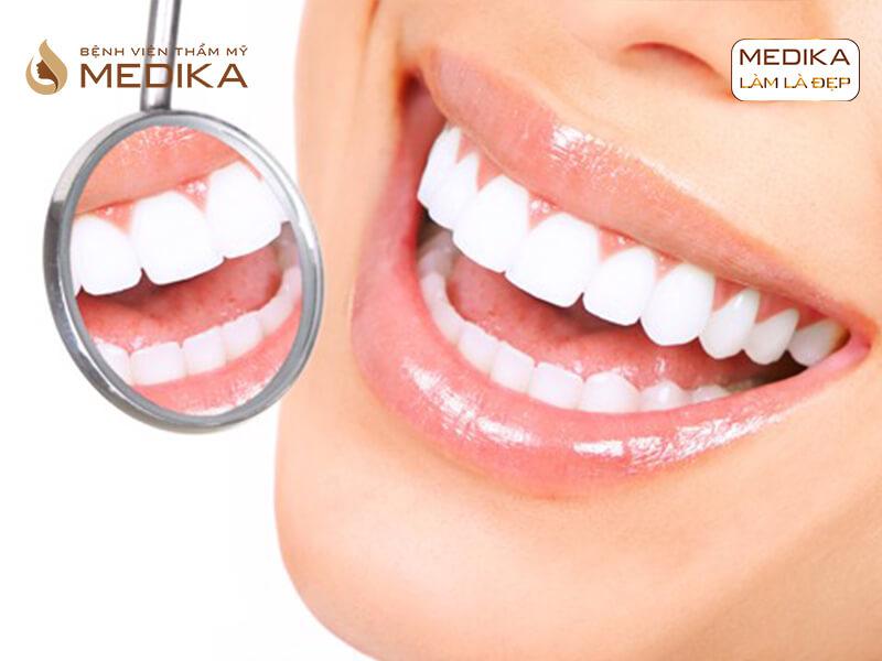 Bọc răng sứ thẩm mỹ nguyên hàm có tốt không? Ở nha khoa MEDIKA