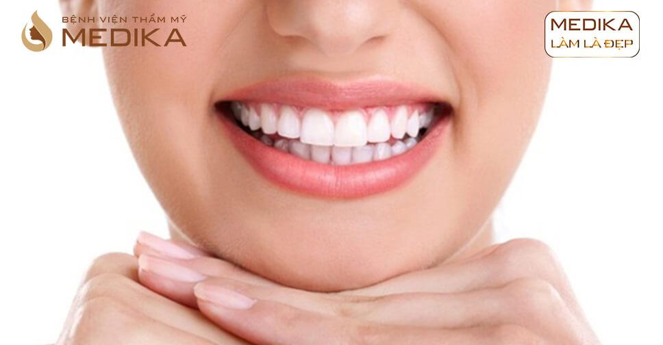 Bọc răng sứ thẩm mỹ nguyên hàm có tốt không? Tại nha khoa MEDIKA