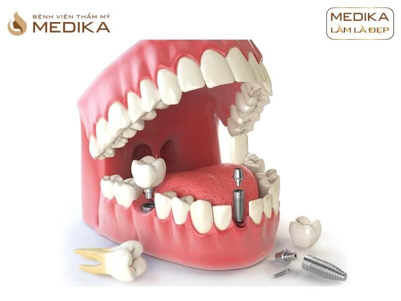 Cách chăm sóc phục hình răng sứ trên Implant để giữ độ bền chắc ở nha khoa MEDIKA