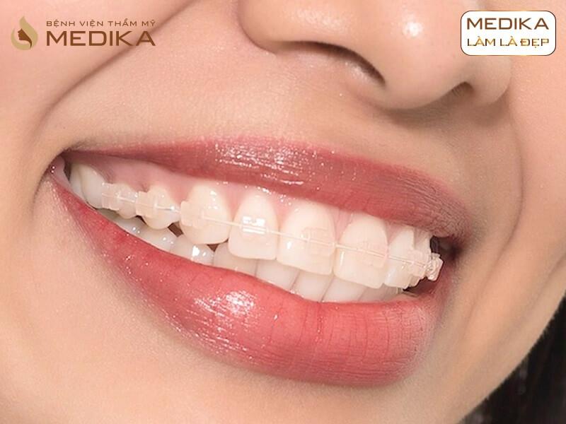 Niềng răng khấp khểnh mất bao lâu? Ở nha khoa MEDIKA