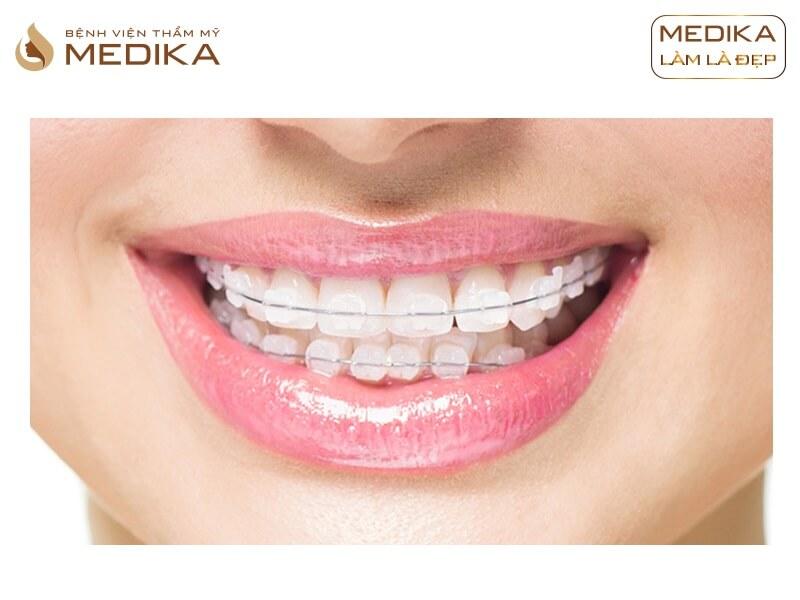 Niềng răng thẩm mỹ 4 răng cửa có được không? Ở nha khoa MEDIKA