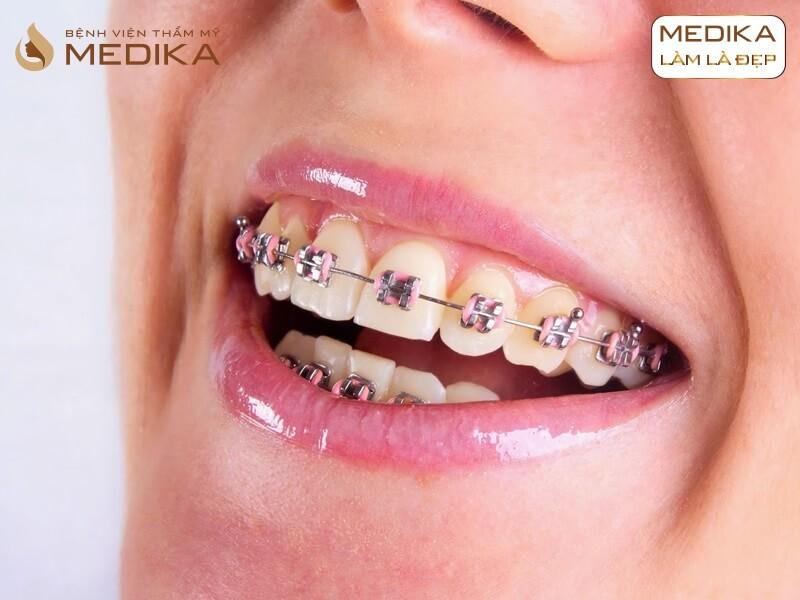 Răng hô có niềng lại được hay không? Ở nha khoa MEDIKA