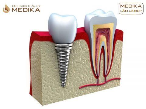 Có thể gắn răng sứ ngay sau khi cấy ghép Implant được không?