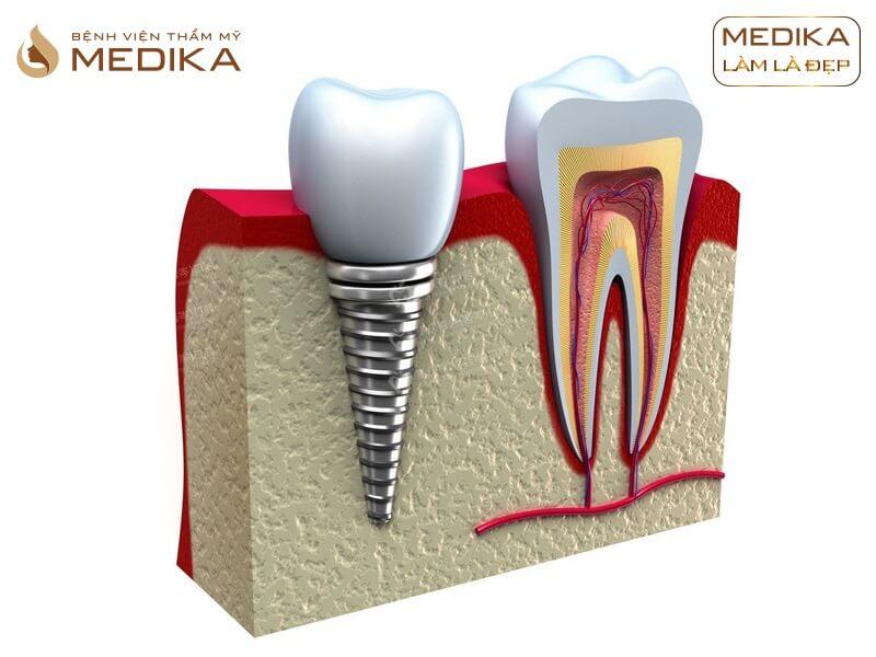 Có thể gắn răng sứ ngay sau khi cấy ghép Implant được không? Ở nha khoa MEDIKA