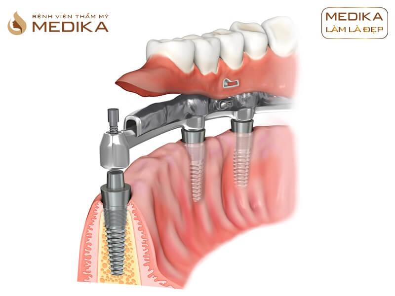 Có thể gắn răng sứ ngay sau khi cấy ghép Implant được không? Tại nha khoa MEDIKA