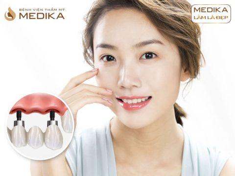 Mất 1 răng nên thực hiện cầu răng sứ hay cấy ghép implant?