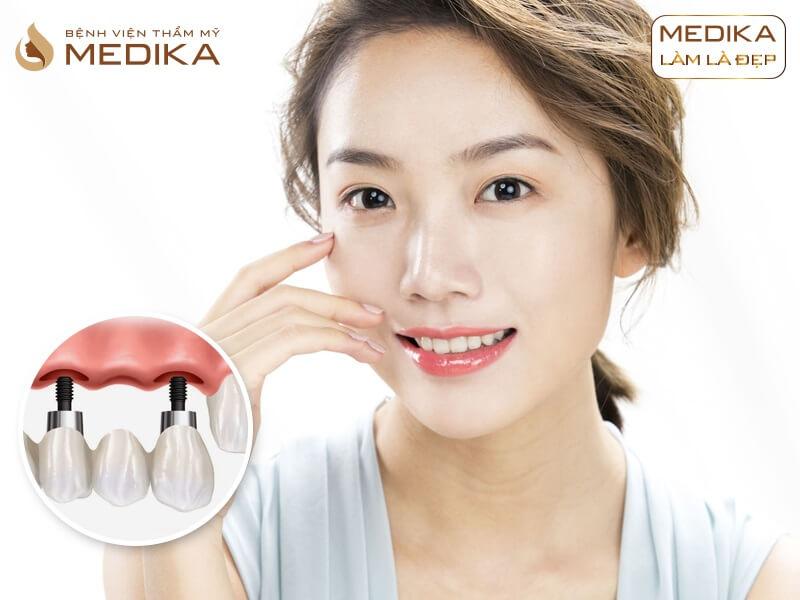 Mất 1 răng nên thực hiện cầu răng sứ hay cấy ghép implant ở nha khoa MEDIKA