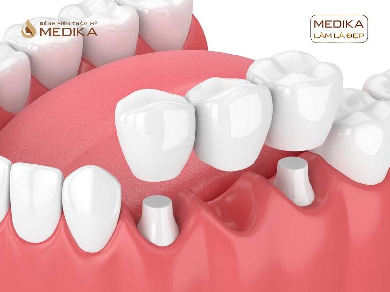 Nguyên do bọc răng sứ thẩm mỹ bị hôi miệng ở nha khoa MEDIKA