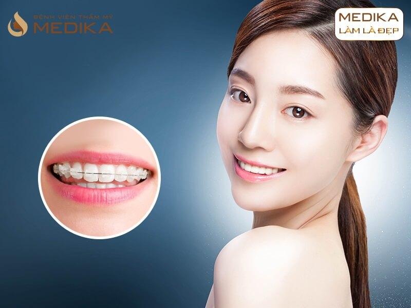 Niềng răng thẩm mỹ có gì khác biệt ở nha khoa MEDIKA