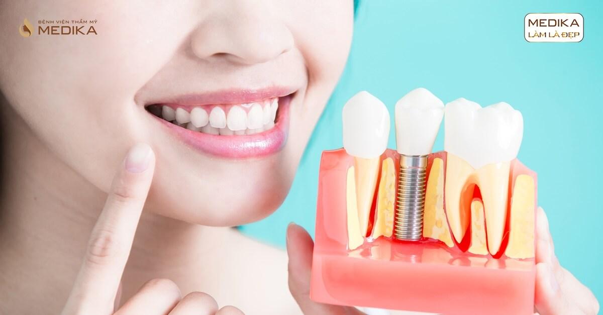 Răng Implant bị đào thải thì phải làm sao ở Nha khoa MEDIKA