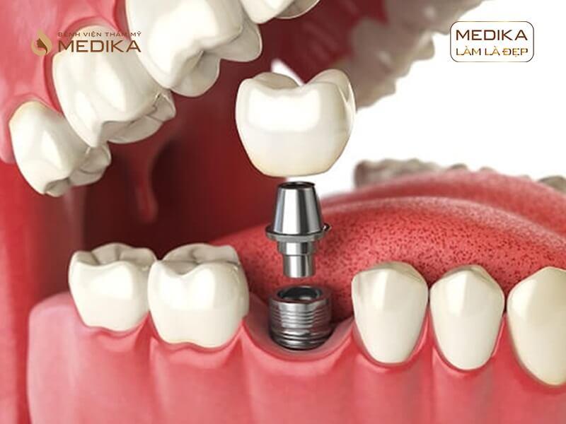 Răng Implant bị đào thải thì phải làm sao tại Nha khoa MEDIKA