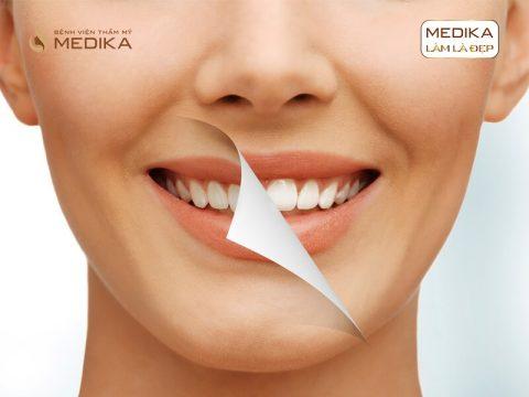 Tẩy trắng răng bằng Laser cho răng bị loang màu có được không?