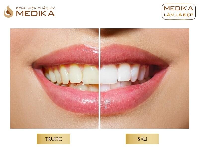 Tẩy trắng răng bằng Laser có hại không tại nha khoa MEDIKA