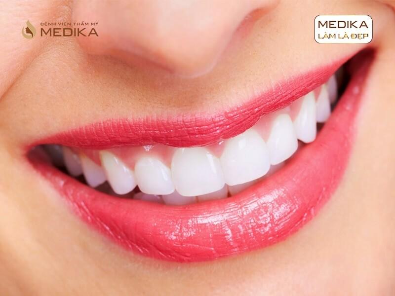 Tẩy trắng răng bằng Laser có làm ê buốt răng không ở nha khoa MEDIKA