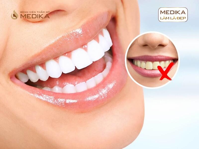 Tẩy trắng răng bằng Laser có làm ê buốt răng không tại nha khoa MEDIKA