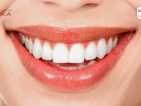 Thực hiện cấy ghép răng Implant bao lâu sẽ lành vết thương?