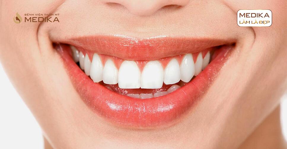 Thực hiện cấy ghép răng Implant bao lâu sẽ lành vết thương ở nha khoa MEDIKA