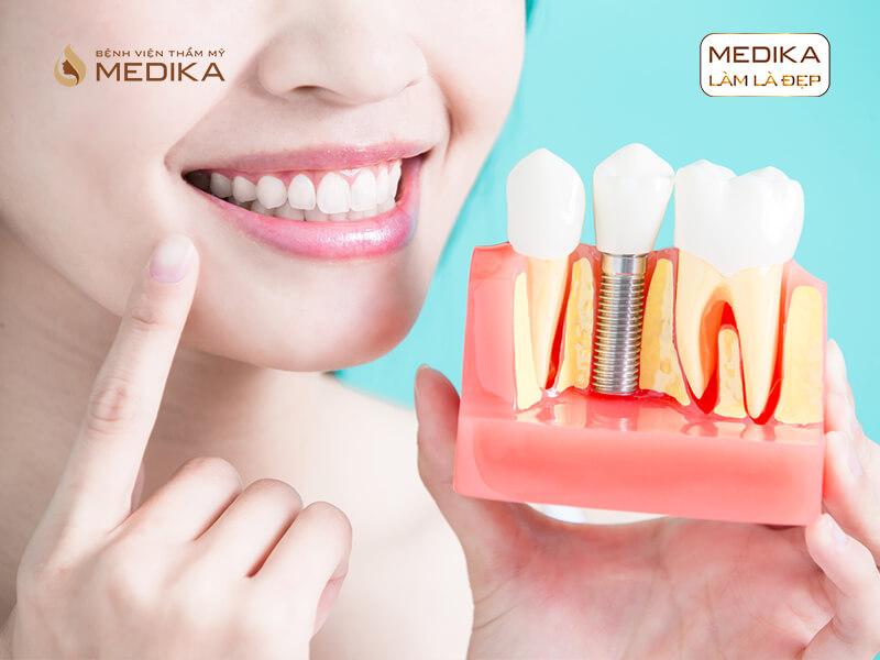 Thực hiện cấy ghép răng Implant bao lâu sẽ lành vết thương tại nha khoa MEDIKA