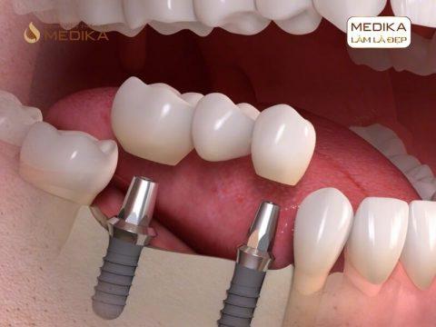 Thực hiện cấy ghép răng Implant bao lâu được gắn răng sứ?