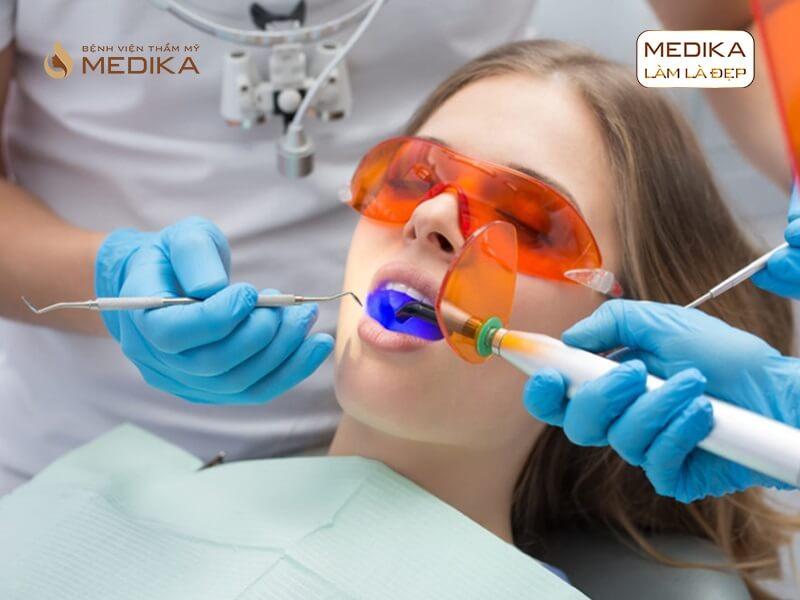 Bao lâu nên thực hiện tẩy trắng răng bằng Laser nha khoa MEDIKA?